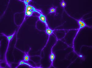 Neuronal calcium overload triggered by tau fibrils andamyloid-βoligomers